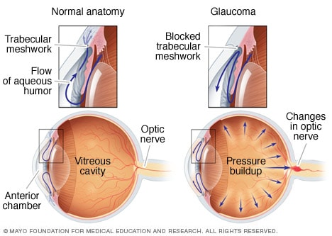 Open-angle glaucoma diagram. It depicts a partial blockage in the trabular meshwork of the eye, resulting in higher eye pressure.