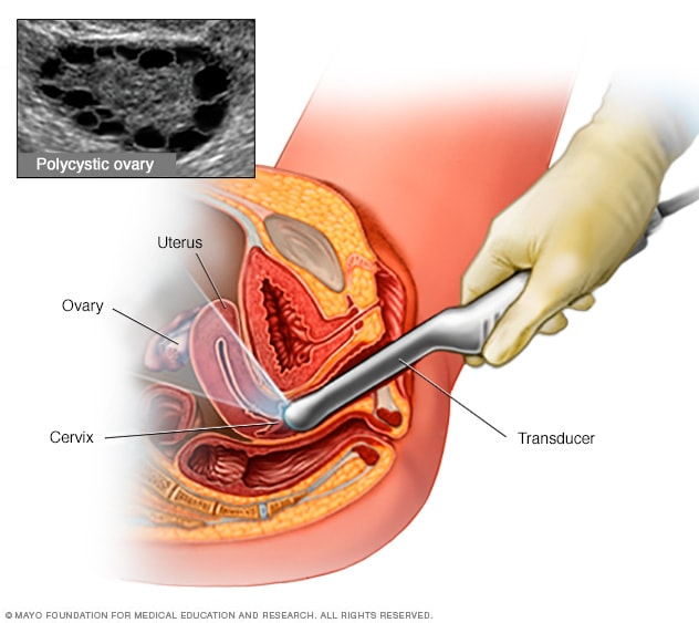 Exams internal vaginal