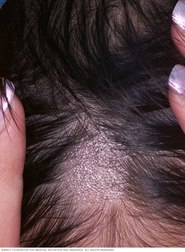 Close-up image of ringworm of the scalp