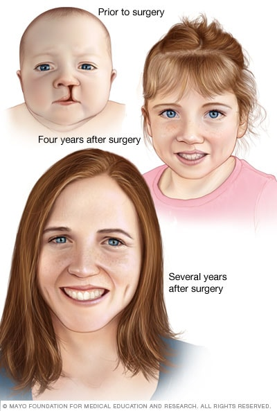 Image of cosmetic results of cleft lip repair