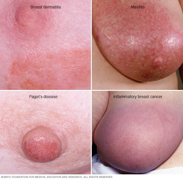 Photos of breast rashes