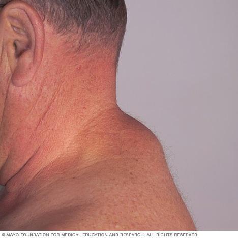 Lipoma Mayo Clinic