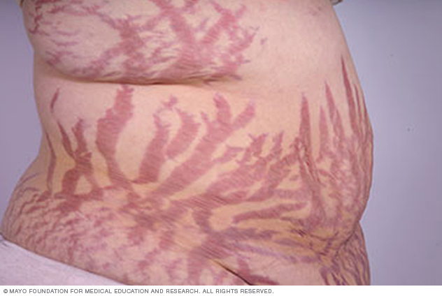 Widespread stretch marks
