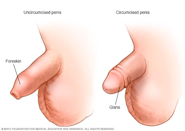 Circumcised vs uncircumcised penis