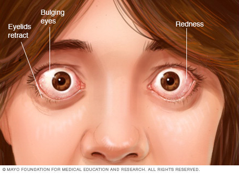 Photograph showing eye complications associated with Graves' disease