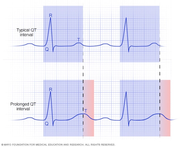 A graph of a normal and prolonged QT interval