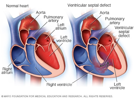 Illustration showing ventricular septal defect