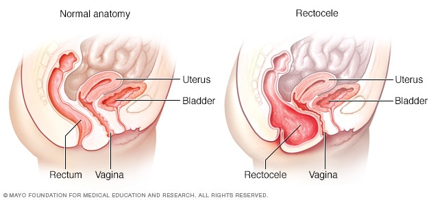 Illustration showing normal anatomy and posterior vaginal prolapse (rectocele)