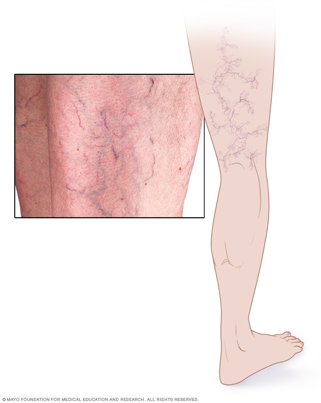 Image of spider veins