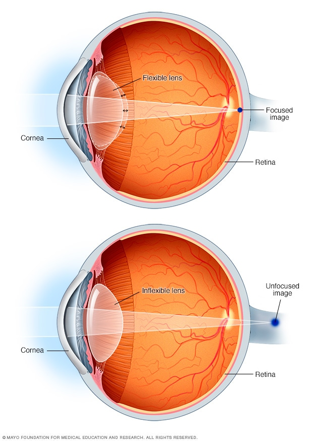 Eyeball with point of focus for presbyopia