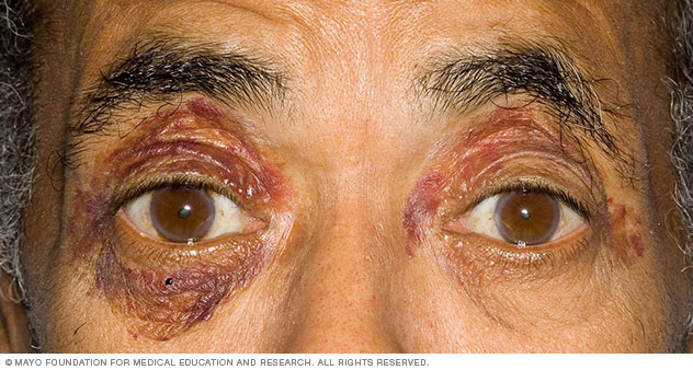 Photograph showing purpura around the eyes, a sign of amyloidosis