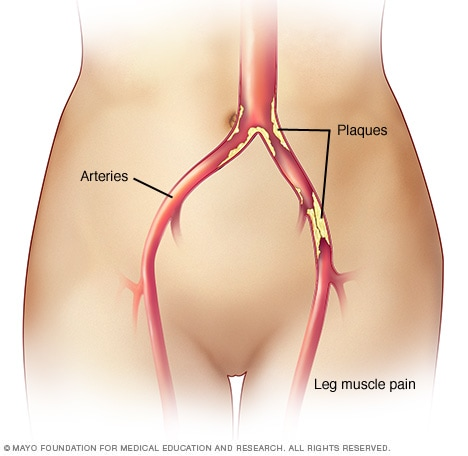 Claudication - Symptoms and causes - Mayo Clinic