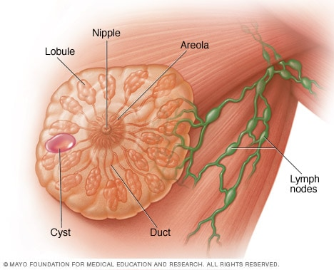 Illustration showing a breast cyst
