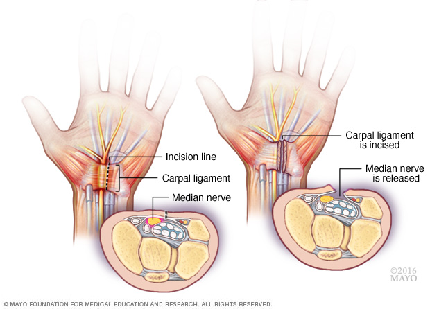 Carpal tunnel release procedure