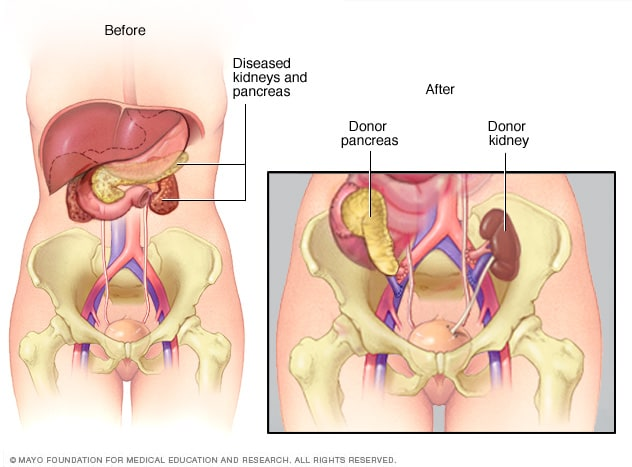 Pancreas And Kidney Transplants Mayo Clinic