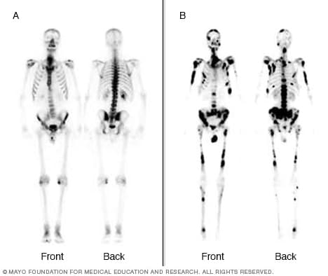 Images of bone scans depicting hot spots