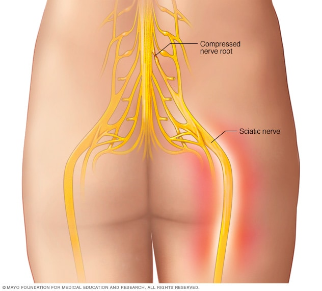 Sciatic Nerve Mayo Clinic