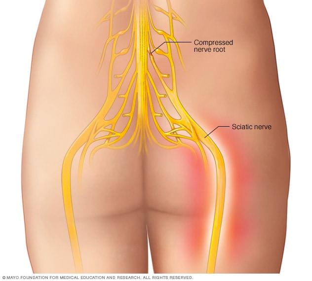 Illustration montrant le nerf sciatique
