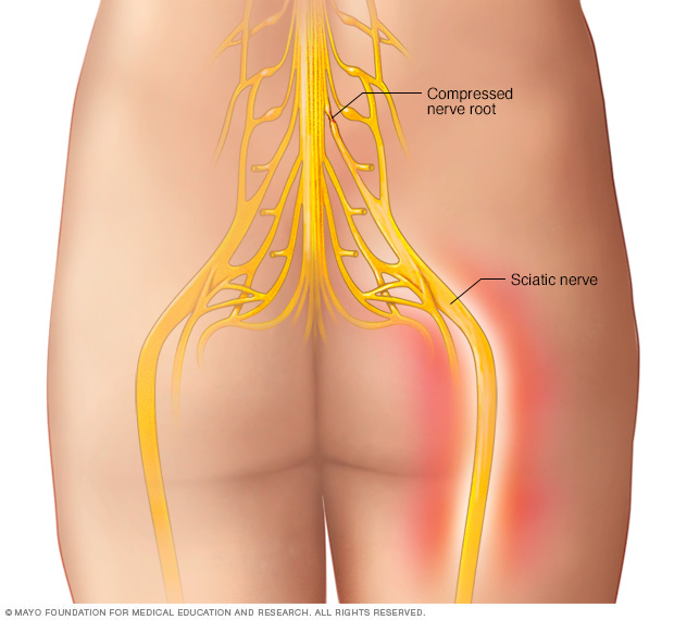 Illustration showing sciatic nerve