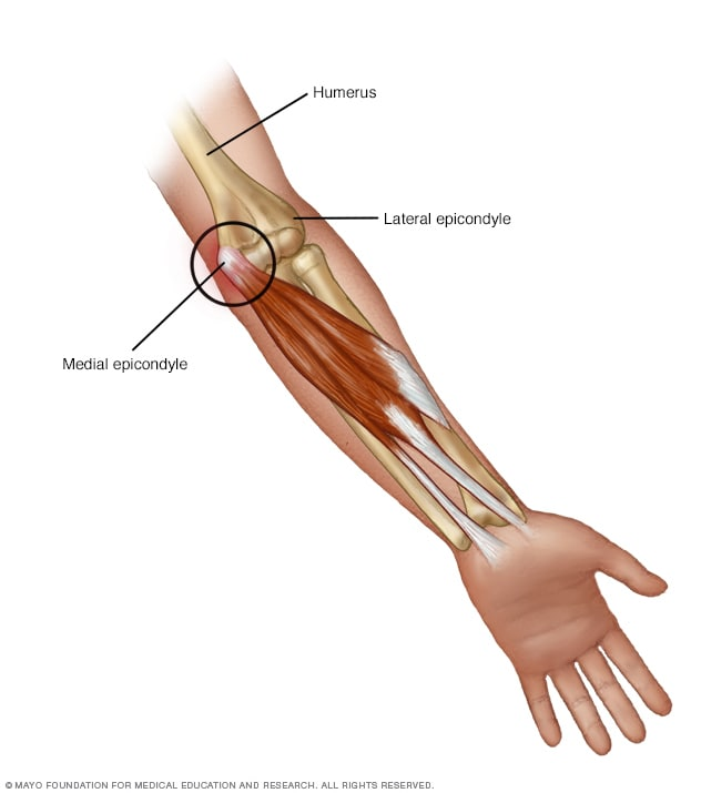 golfer s elbow symptoms and causes mayo clinic