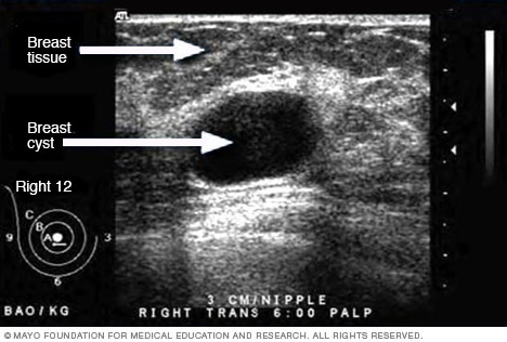 Ultrasound Of Breast Cyst Mayo Clinic