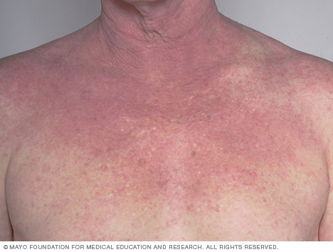 Image showing atopic dermatitis on the chest