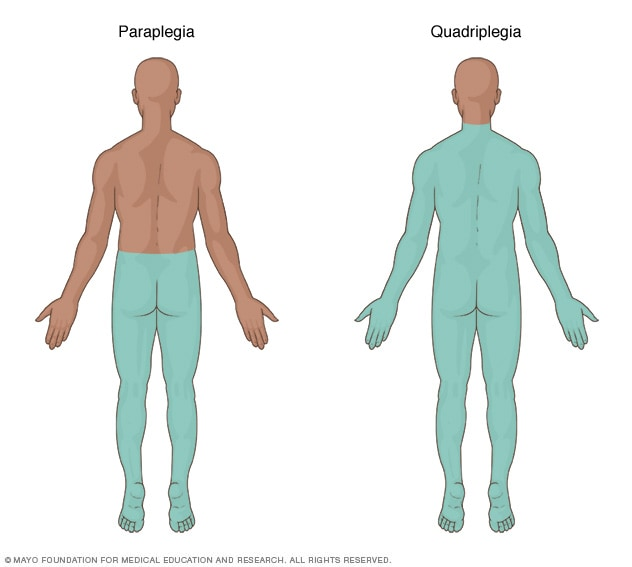 Illustration showing the area of the body affected by paraplegia and quadriplegia