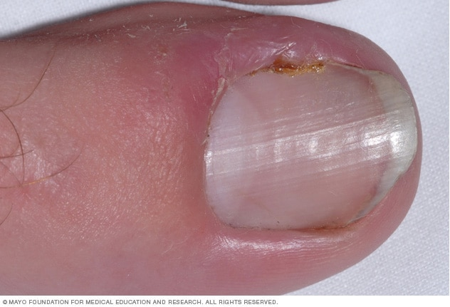 Photo showing an ingrown toenail
