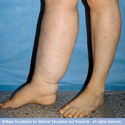Photograph of a person with leg lymphedema