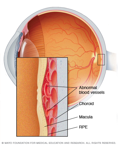 Illustration showing wet macular degeneration