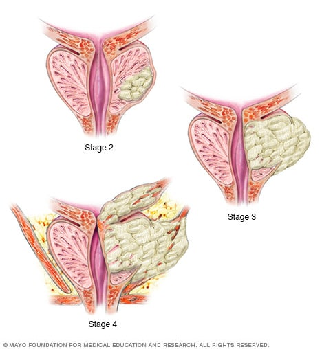 Illustration showing prostate cancer stages