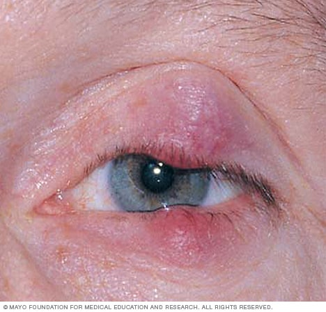 Photograph showing a chalazion