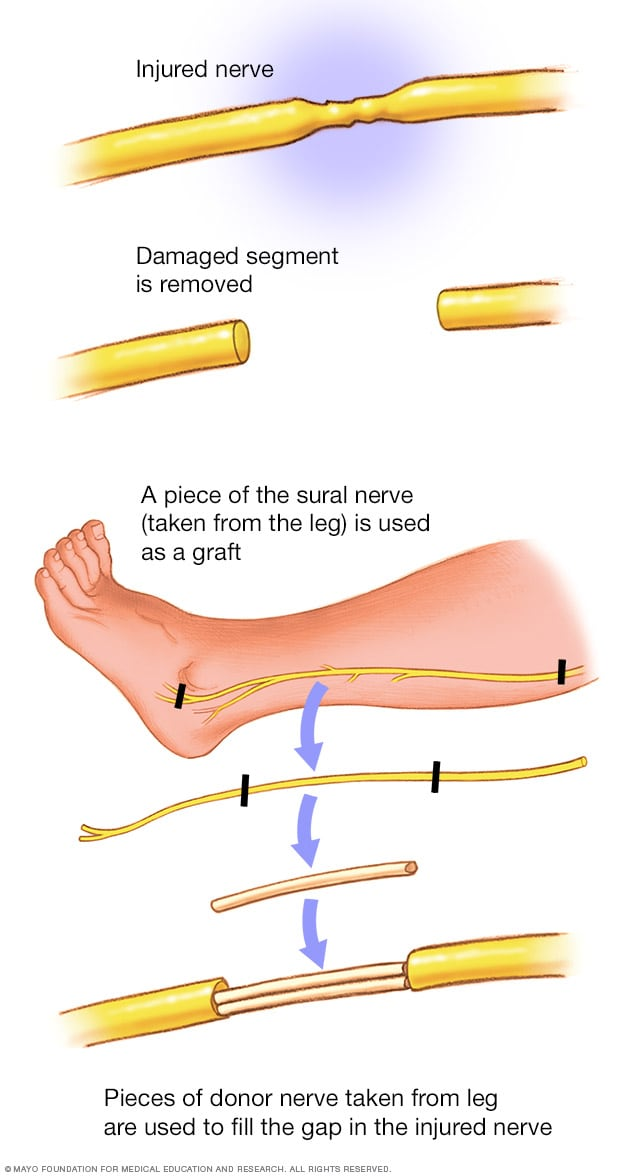 Illustration showing nerve graft