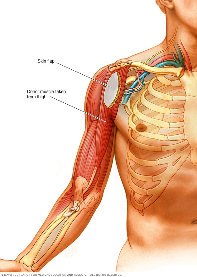 Illustration showing muscle transfer