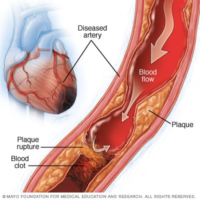 Illustration showing causes of myocardial ischemia