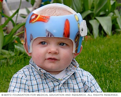 Baby wearing molded helmet