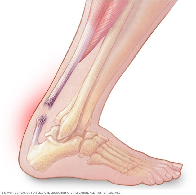 achilles tendon rupture - symptoms and causes - mayo clinic, Human Body