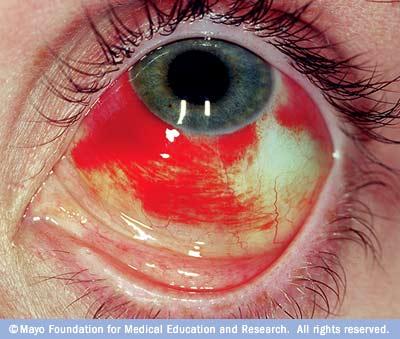 Broken Blood Vessel In Eye Mayo Clinic