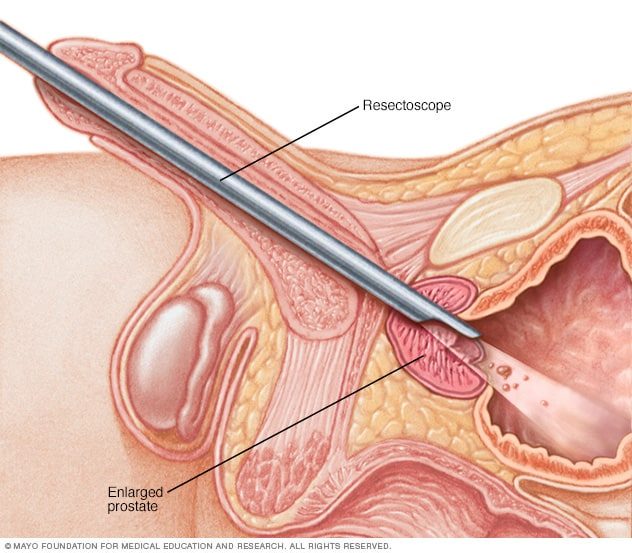 Illustration showing TURP procedure