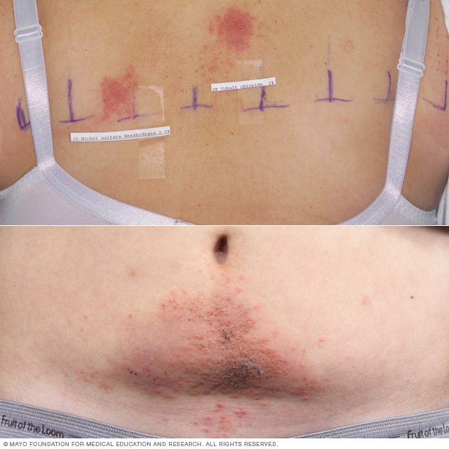 Image showing nickel allergy rash