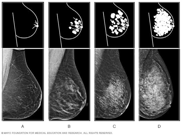 Mammogram films showing the four levels of breast density