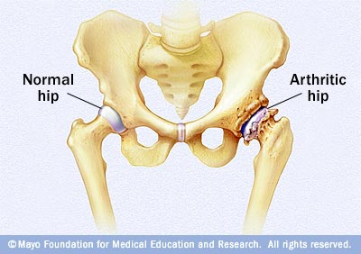 Illustration showing differences between a normal hip and one that's been damaged by arthritis