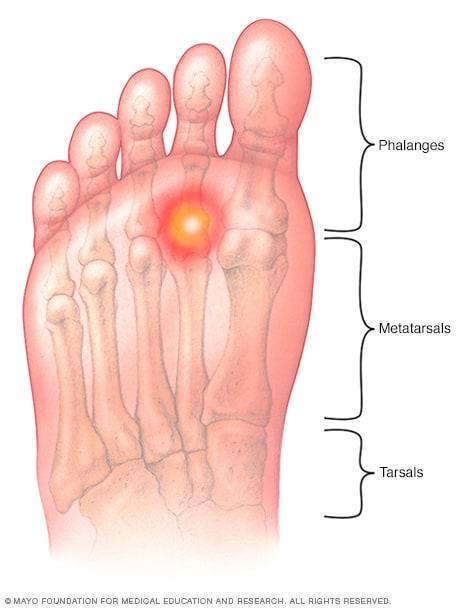 metatarsalgia   symptoms and causes   mayo clinic