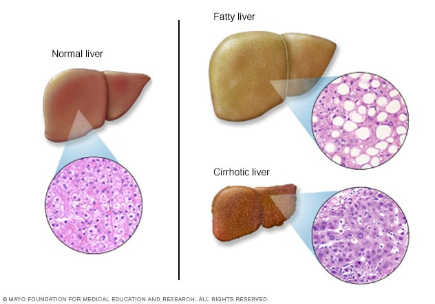 Liver problems showing normal and diseased livers