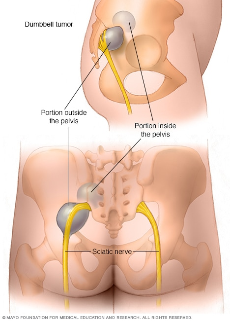 Peripheral nerve tumors - Symptoms and causes - Mayo Clinic