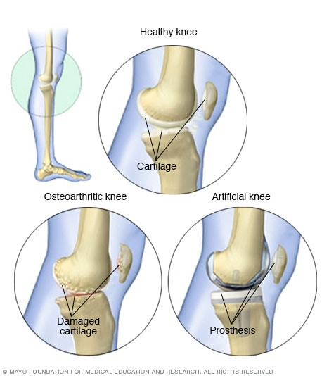 Images of knee, before and after knee replacement surgery