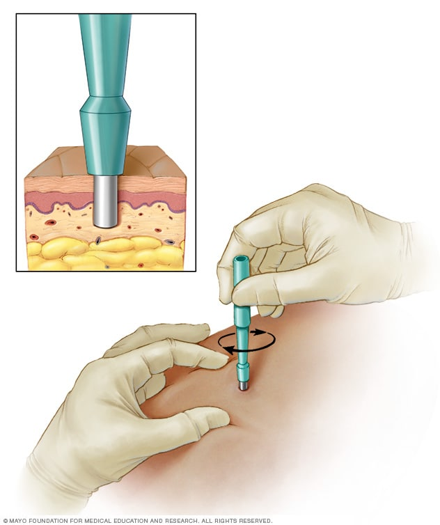 Illustration showing punch biopsy of the skin