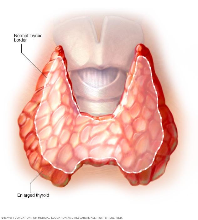 Illustration showing enlarged thyroid