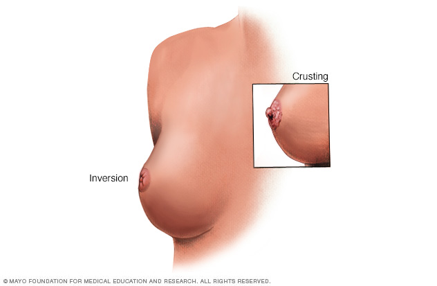Illustration of nipple changes