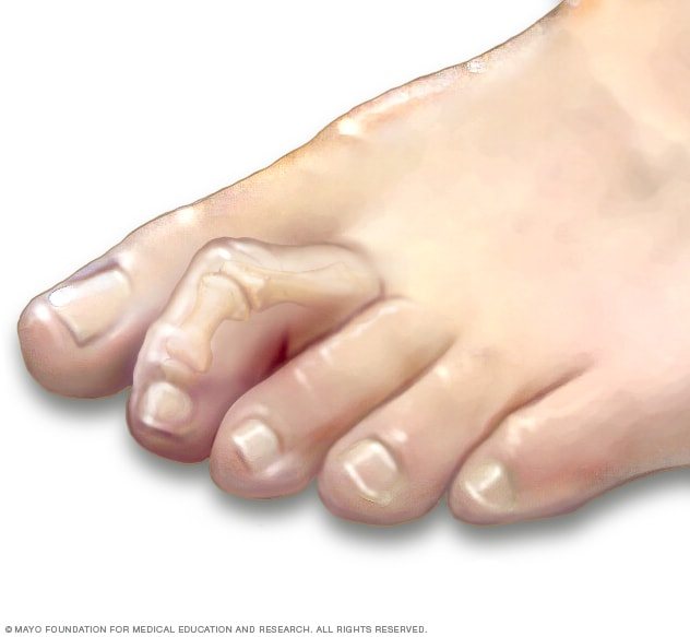Hammertoe and mallet toe picture from Mayo Clinic